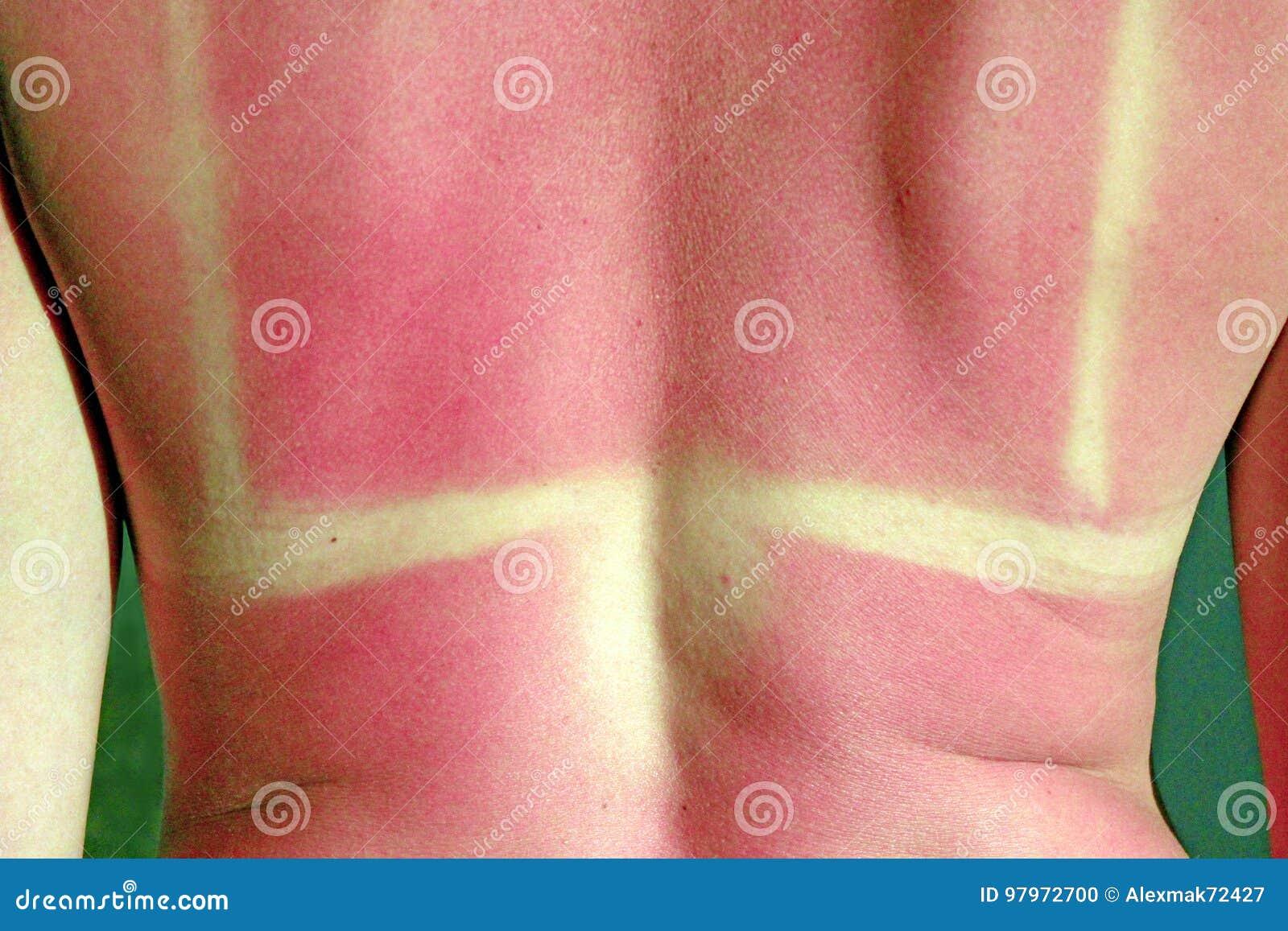 Brandwond van de zon op het lichaam