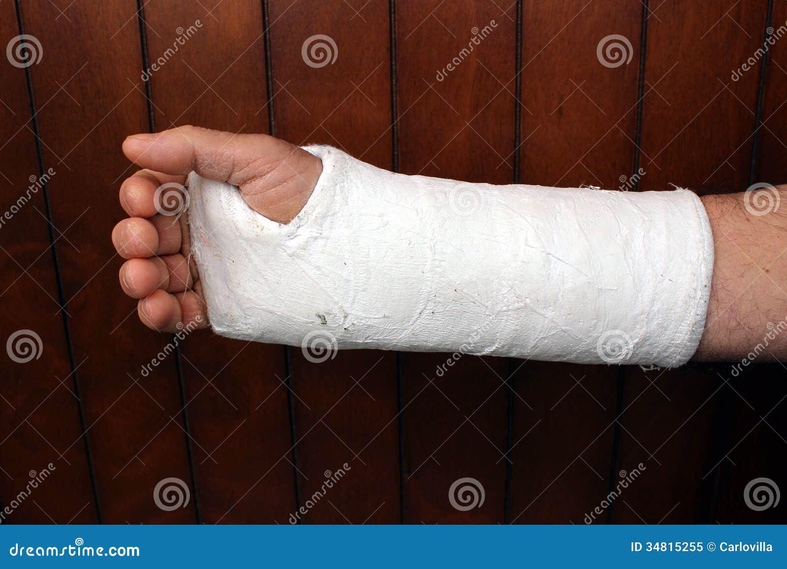 Brazo en yeso imagen de archivo imagen de brazo roto - Imprimacion para paredes de yeso ...