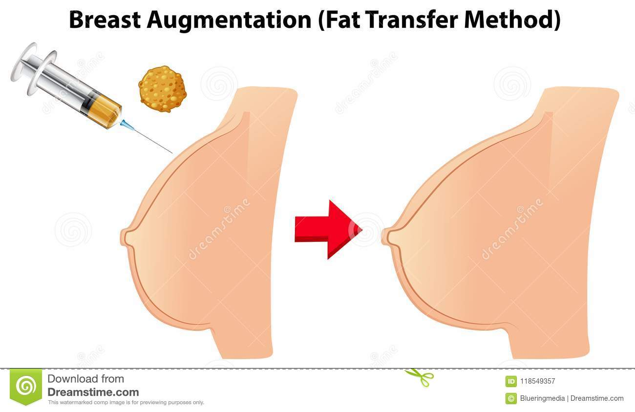 Breast Augmentation Fat Transfer Method Stock Vector