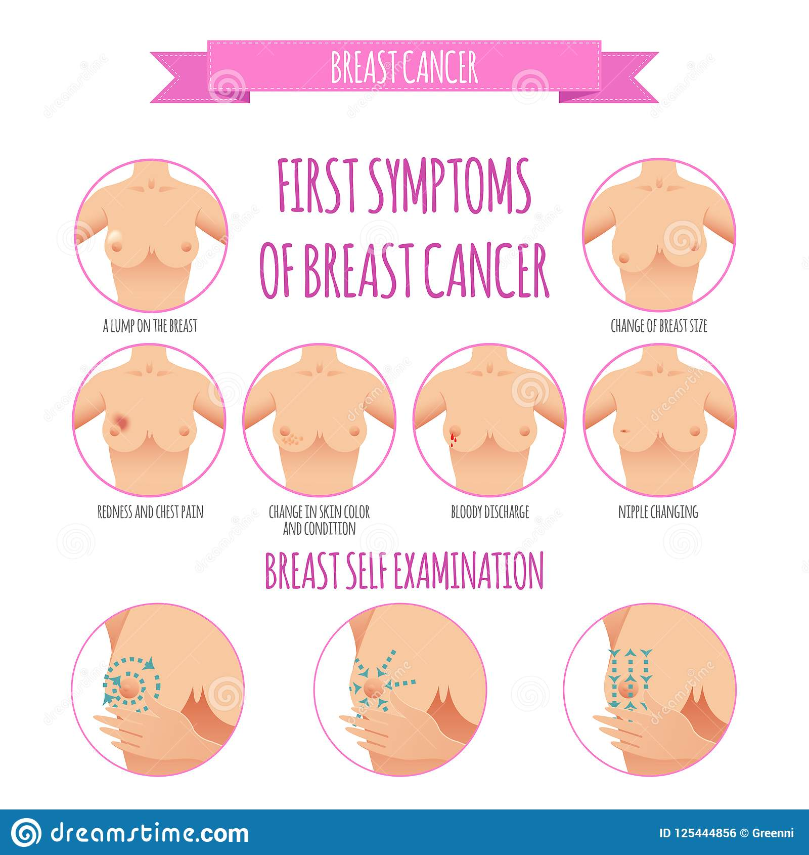 Breast Cancer Awareness Infographic Set Stock Vector - Illustration ...