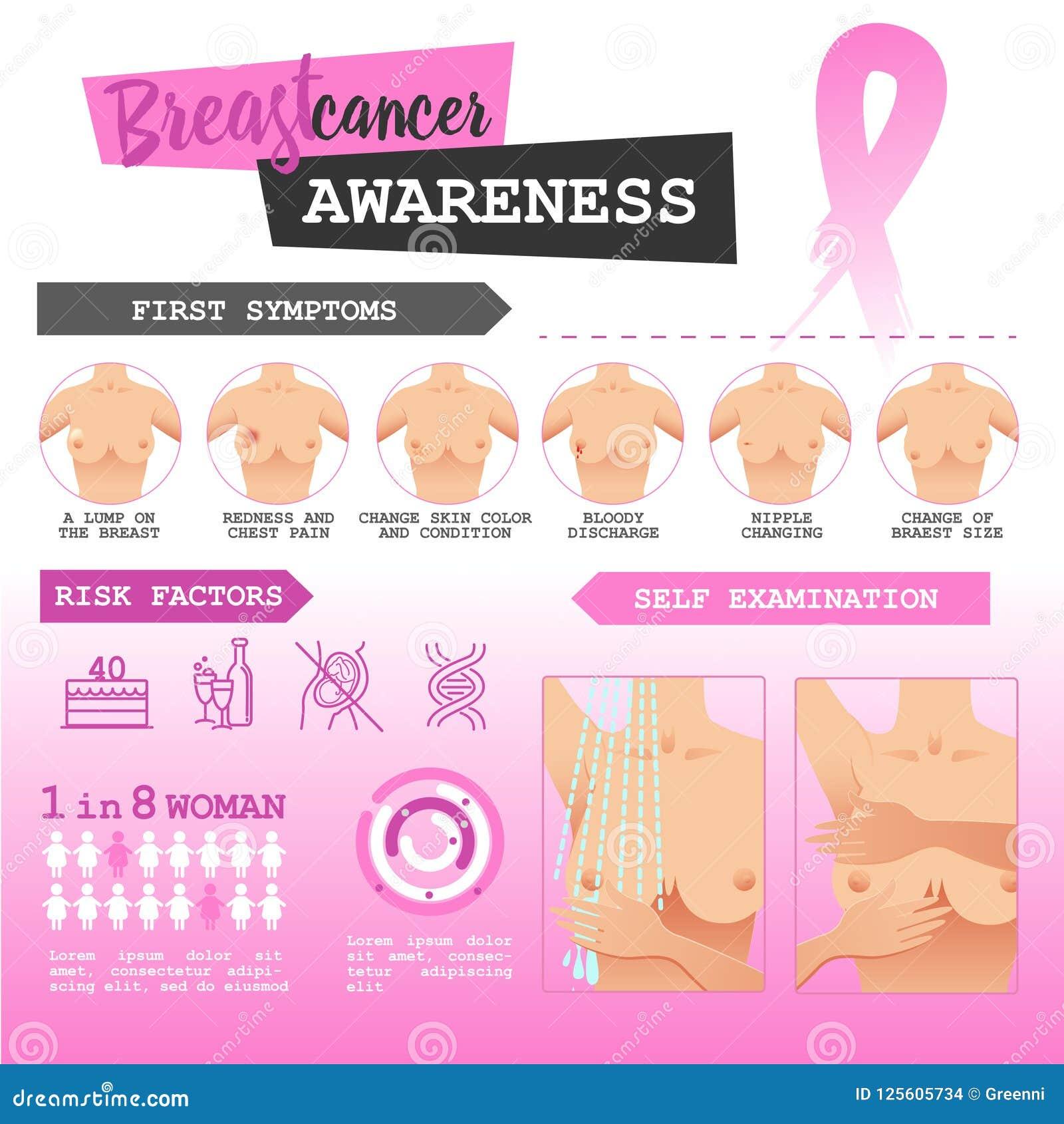 Breast self exam discharge