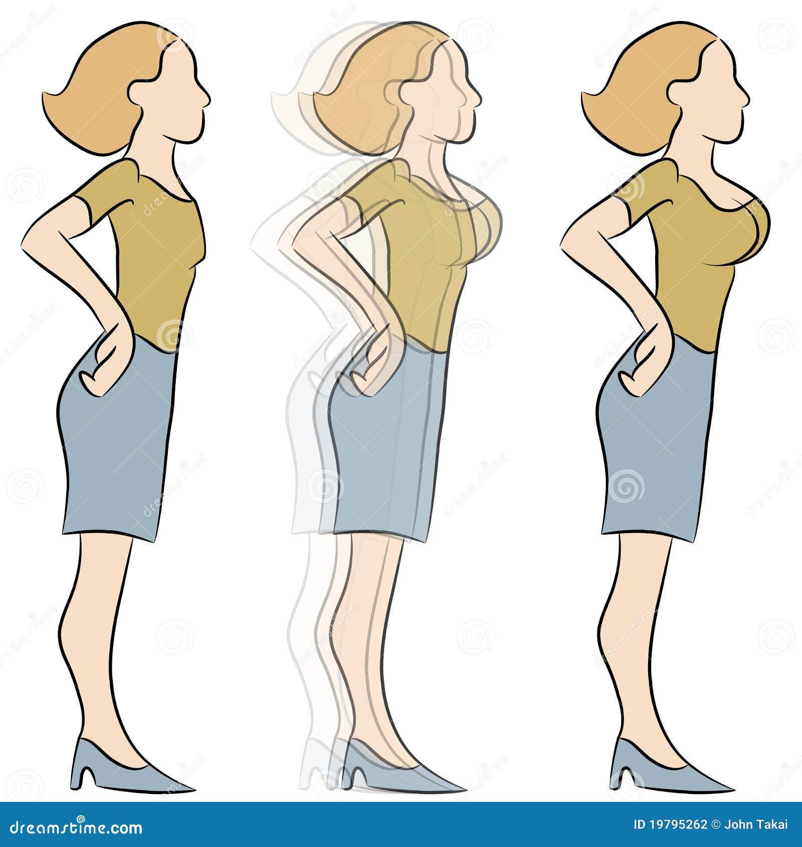 Breast Enlargement Transformation Stock Vector - Illustration of ...