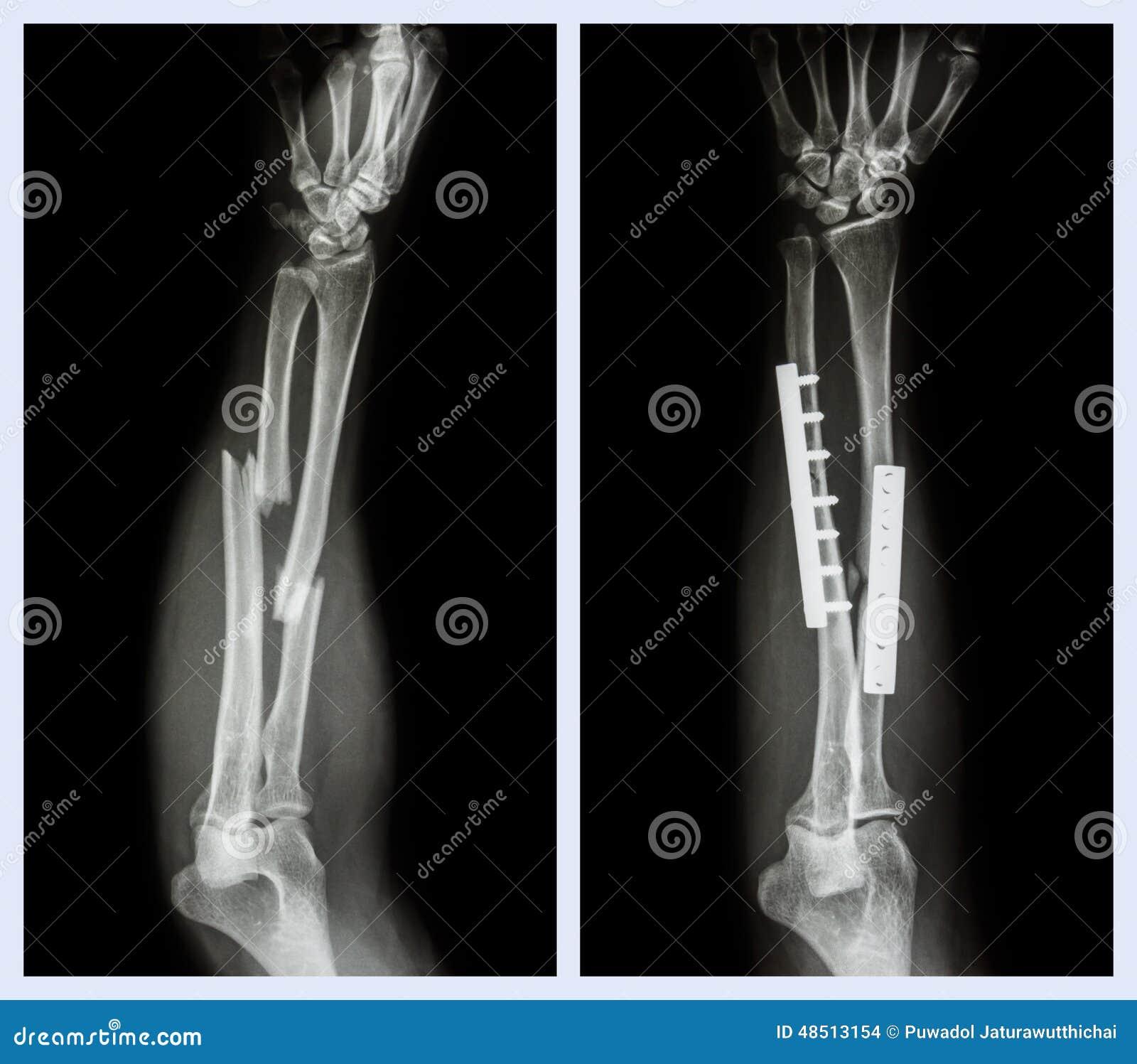 Breuk beide been van voorarm Het werd in werking gesteld en intern vast met plaat en schroef