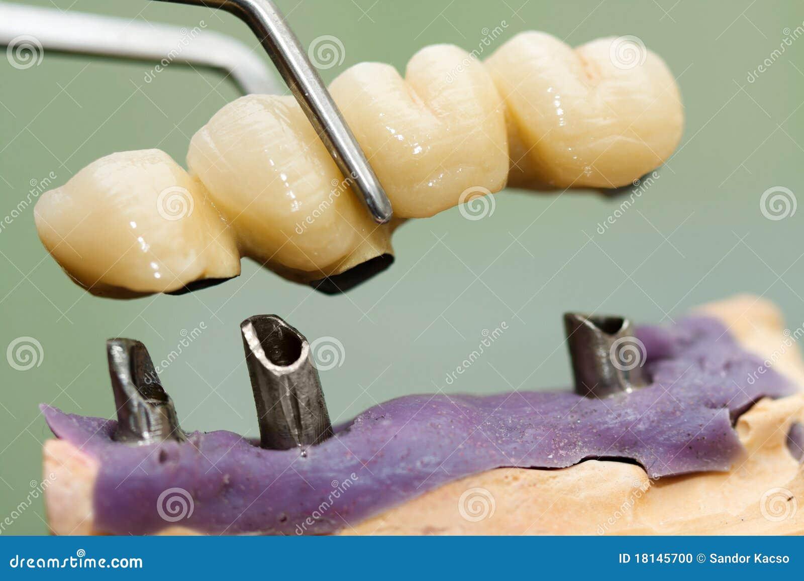 Bridżowy stomatologiczny kierowniczy wszczep