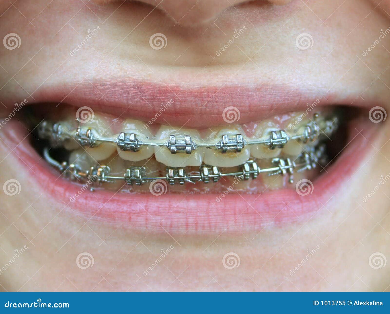 Brides sur des dents