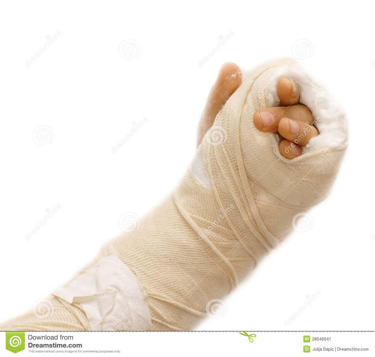 Broken arm bone in a cast and bandages over white background isolated.