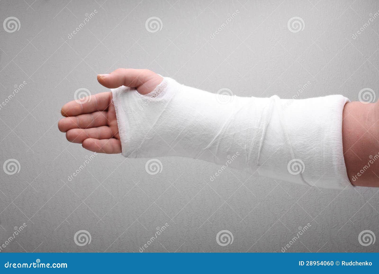 Broken Arm Bone In Cast Stock Photo - Image: 28954060