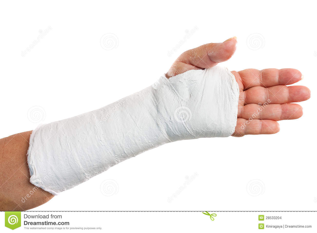 Broken arm with a plaster cast stock photo image 28533204 - Como hacer un molde de escayola ...