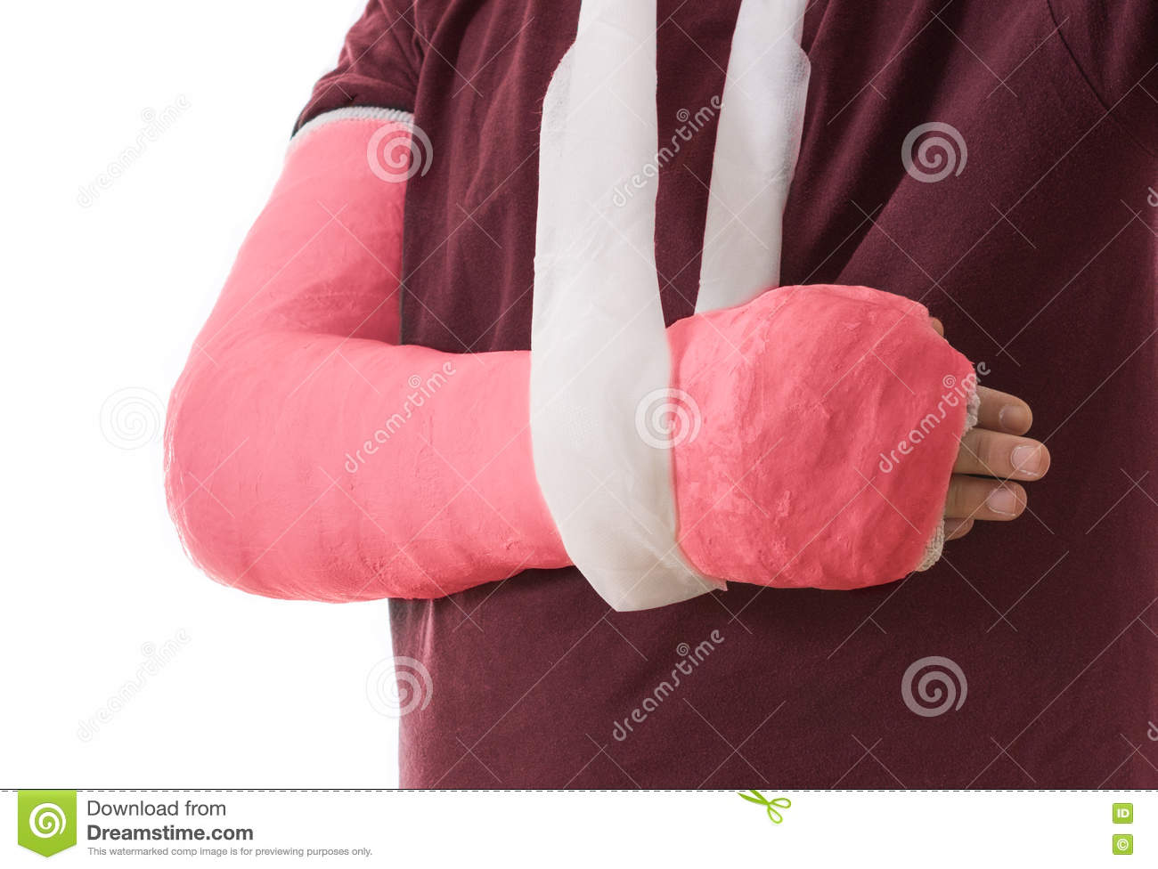 Broken arm in red plaster cast and sling stock photo for Red top gypsum plaster