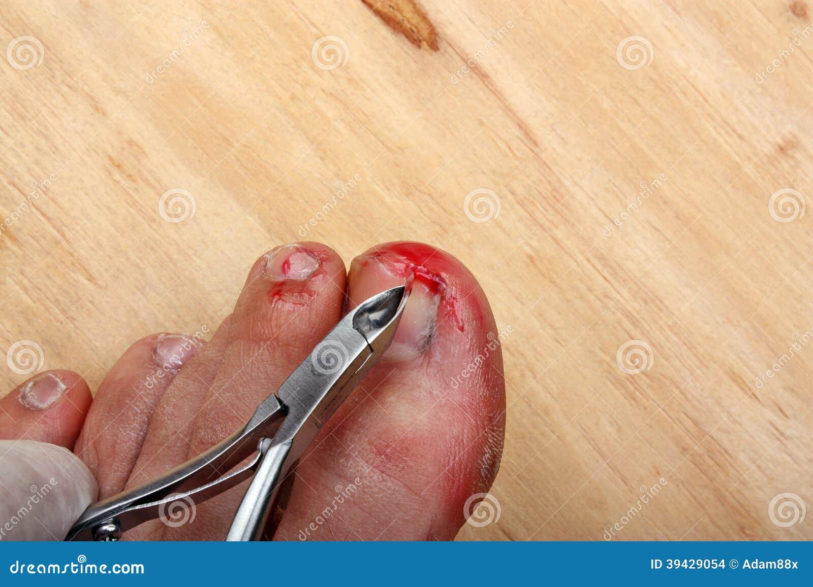 how to set a broken toe