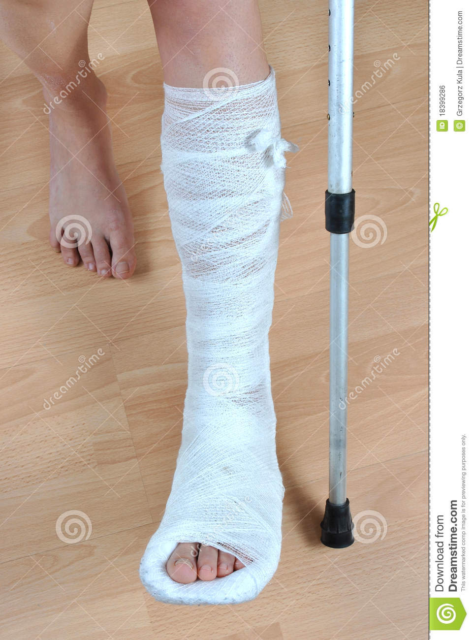 broken leg royalty free stock image cartoondealer com bone fracture clipart bone fracture clipart