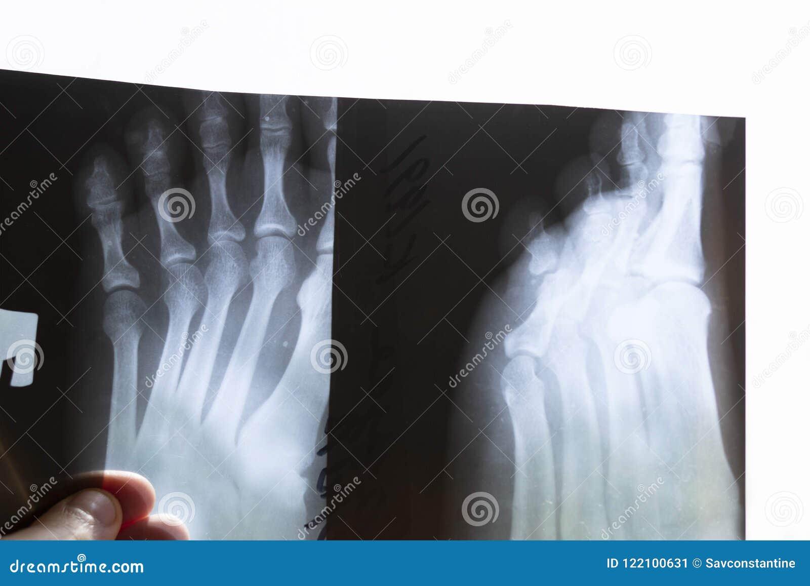 Broken leg.