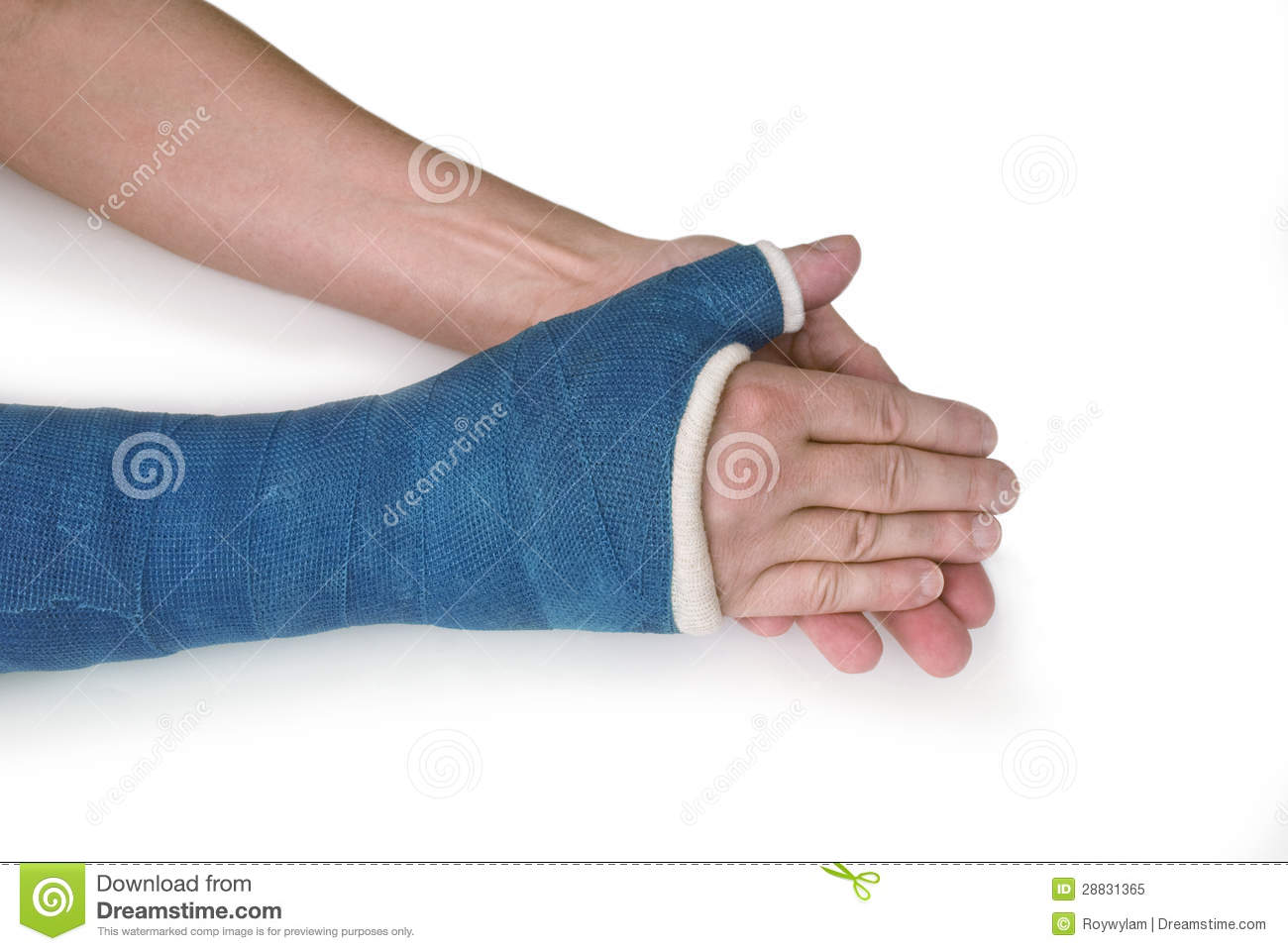 Stock Illustration Human Skeleton D Digital Render Eagle Claw Martial Arts Position Isolated White Background Image46433453 likewise Knee joint together with Vertebrate also Broken Wrist Arm Blue Fiberglass Cast moreover Colorful Casts Abound Its Fracture Season. on orthopedic cartoon bones