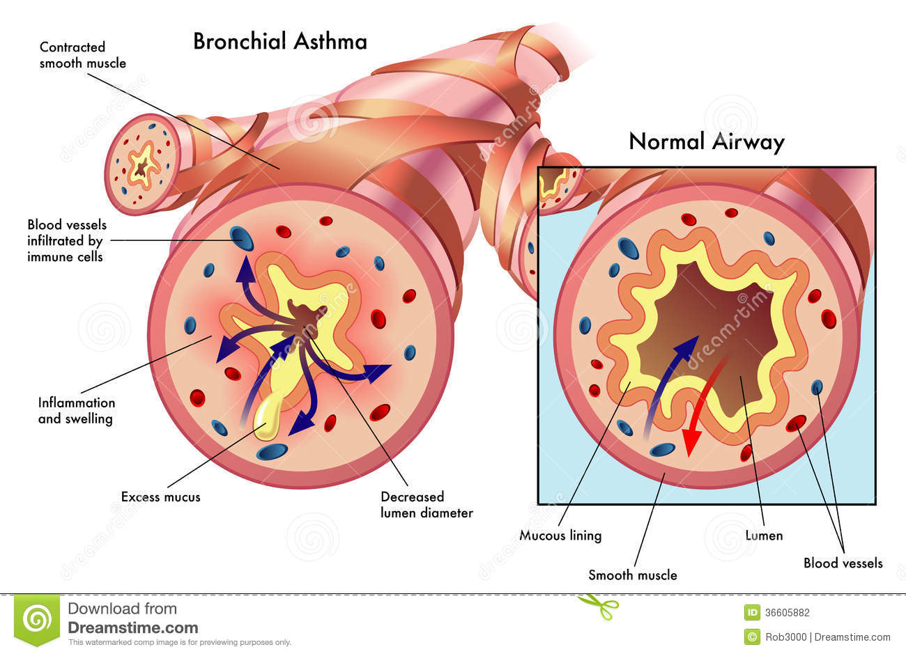 how to clear bronchial mucus