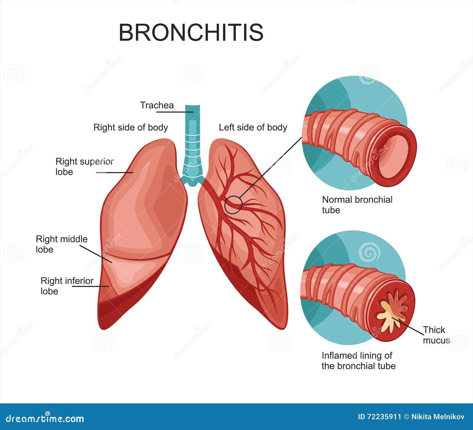 Бронхит и тонзиллит схема лечения