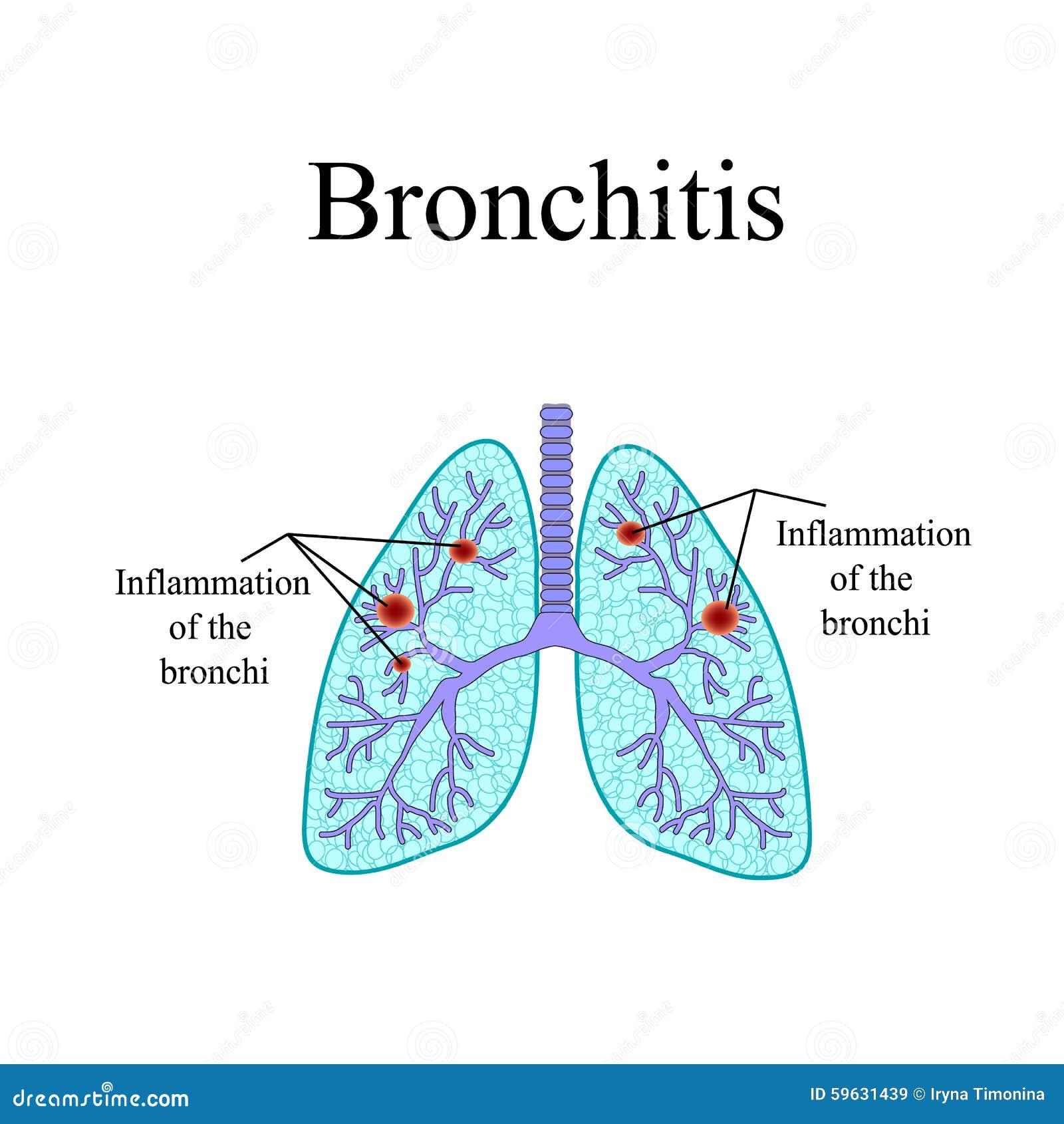 Bronchitis Die Anatomische Struktur Des Menschen Vektor Abbildung ...