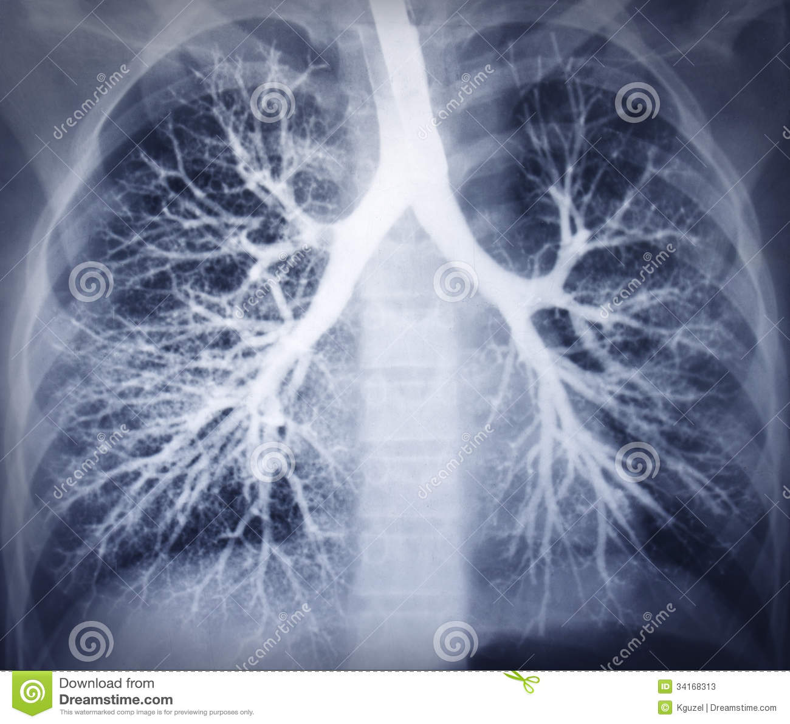 Bronchoscopybild. Brustradiographie. Gesunde Lungen