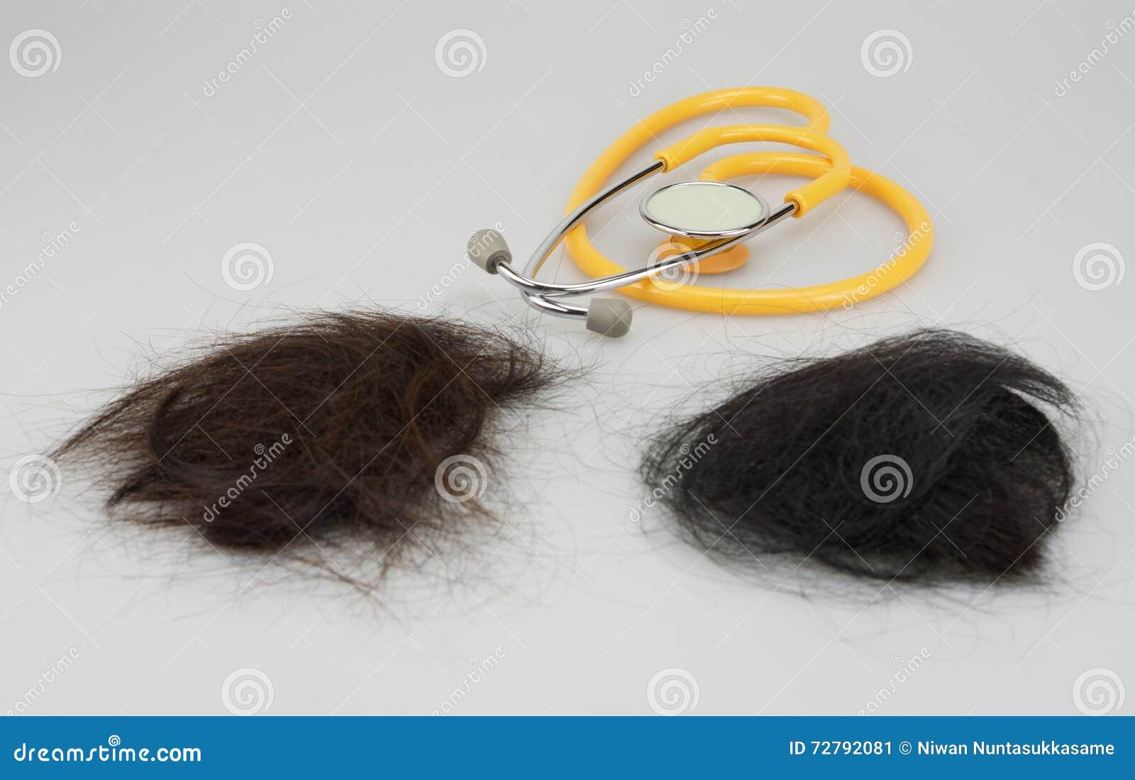 Brown und verlorenes Haar des Schwarzen mit Stethoskop