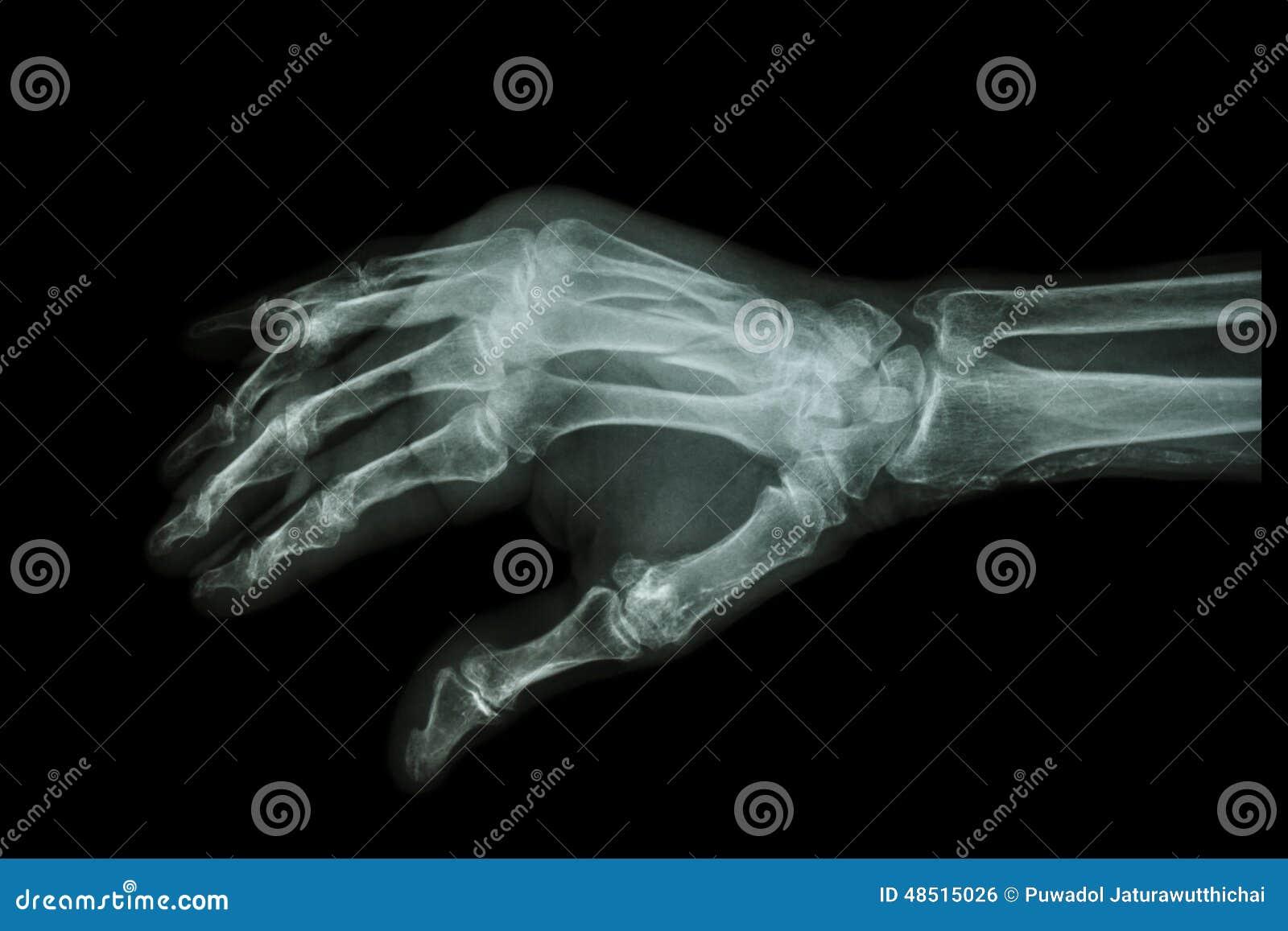 Bruch Am 3. Und 4. Metacarpal Knochen Stockfoto - Bild von knochen ...
