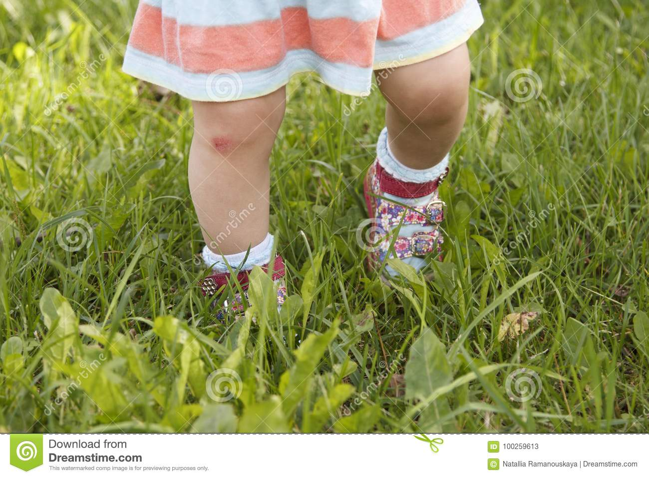 Bruise on the child`s knee stock image  Image of abrasion - 100259613