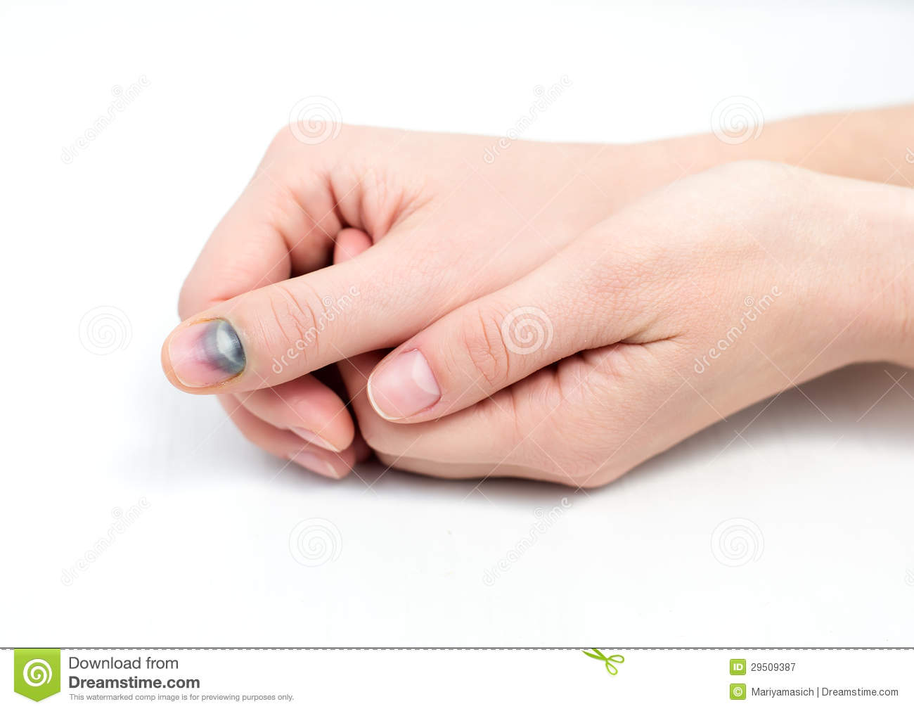 Bruise On Nail The Womans Finger Royalty Free Stock Photography