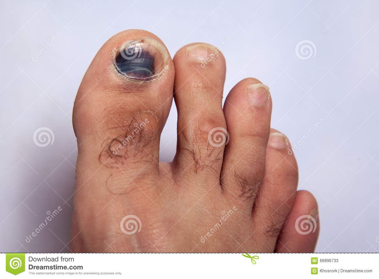 Bruise On Toe Nail On Right Foot Stock Image - Image of accident ...
