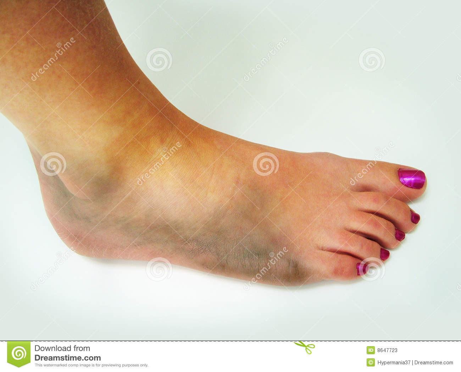 Ушиб голеностопного сустава и его лечения в домашних условиях