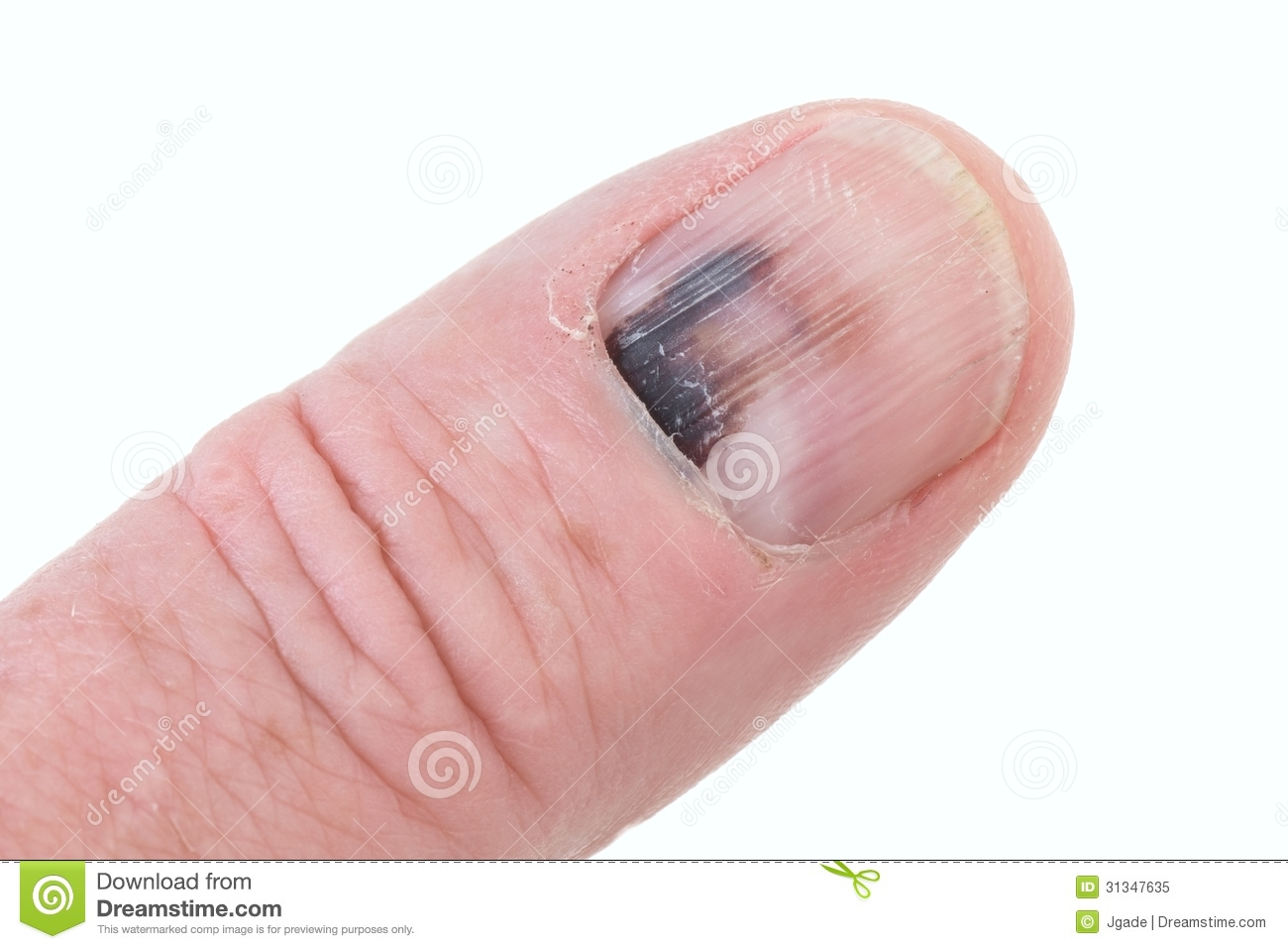 How can i start an informatitve essay on nails?PLEASE HELP!!!?