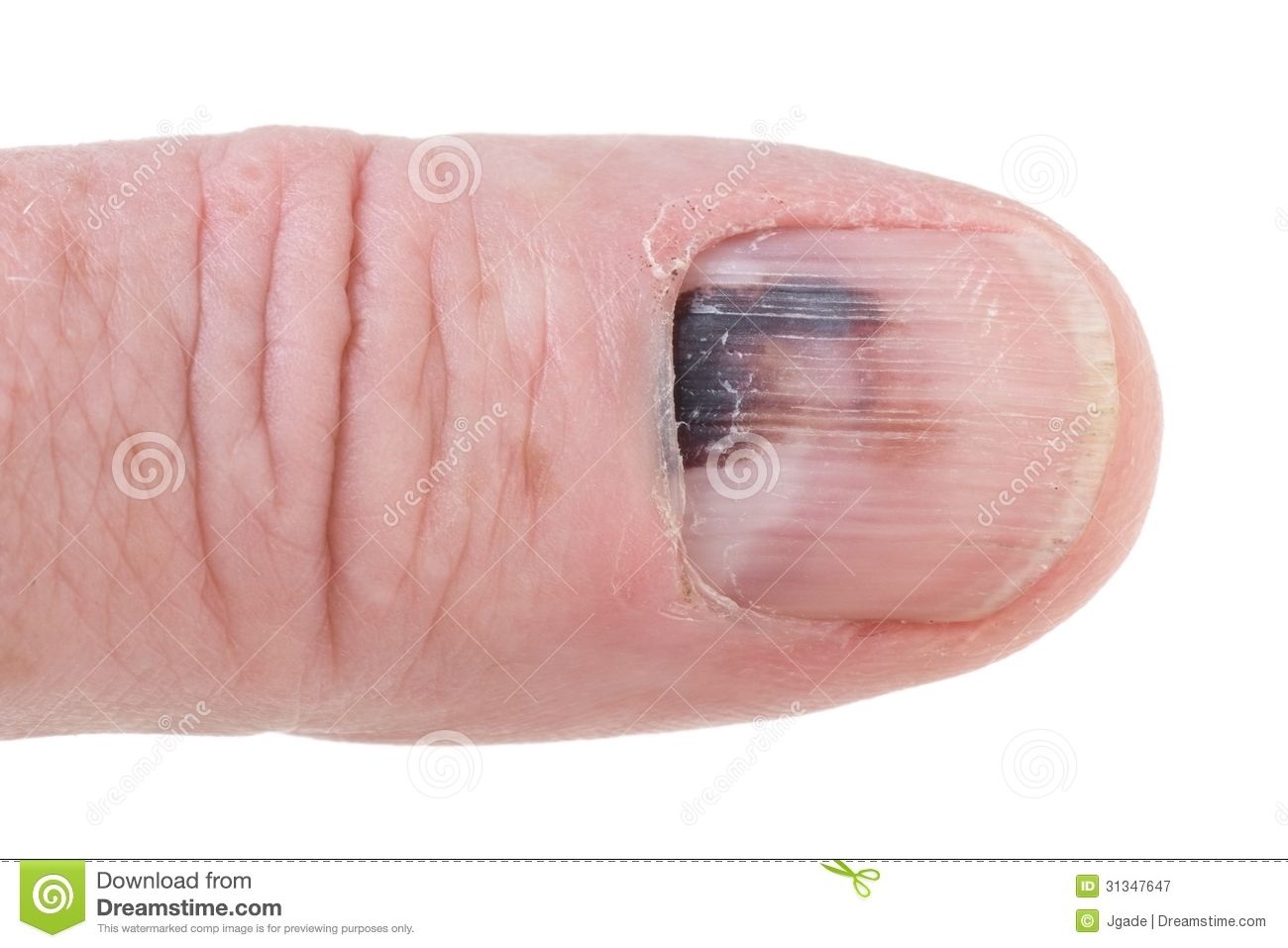 how to tell if finger broken or bruised