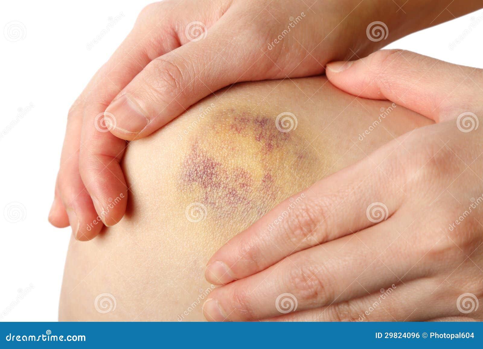 Bruised Knee Stock Photo Image Of Treatment Inflammation