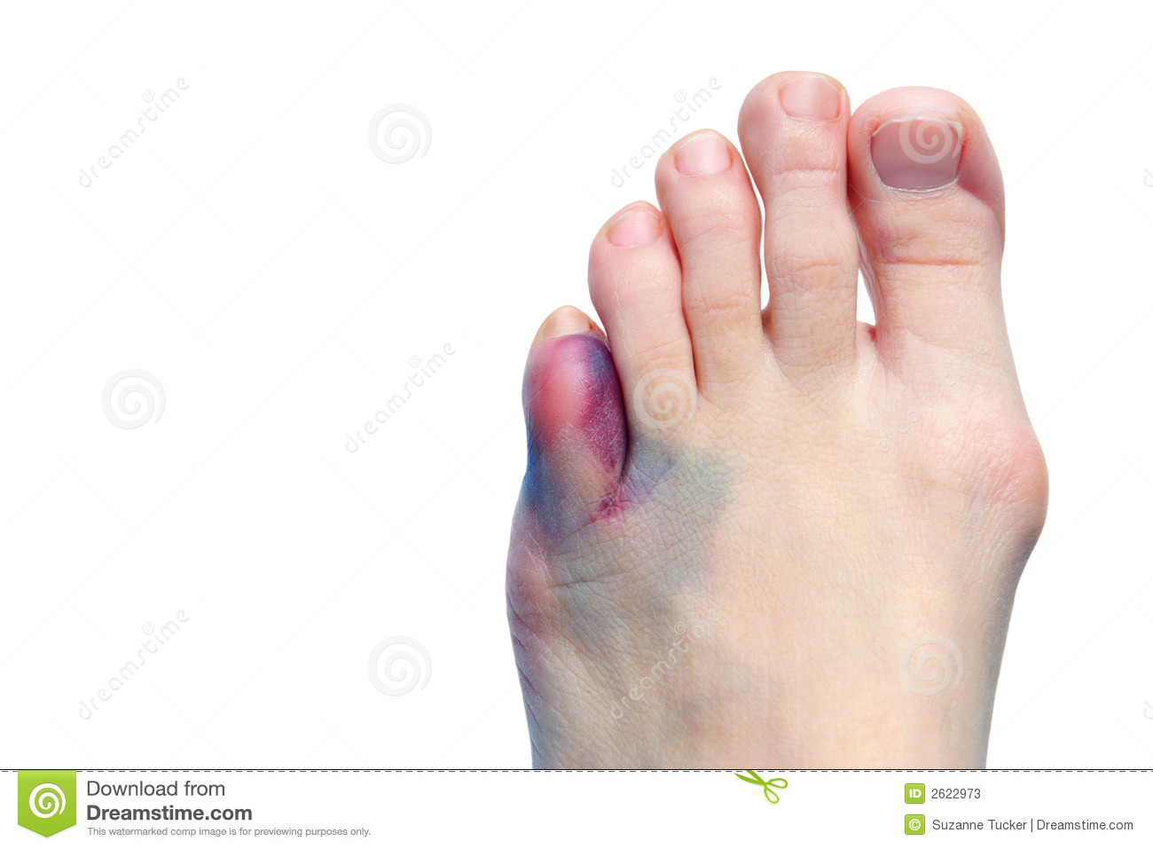... by the bone protruding abnormally outward near the ball of the foot