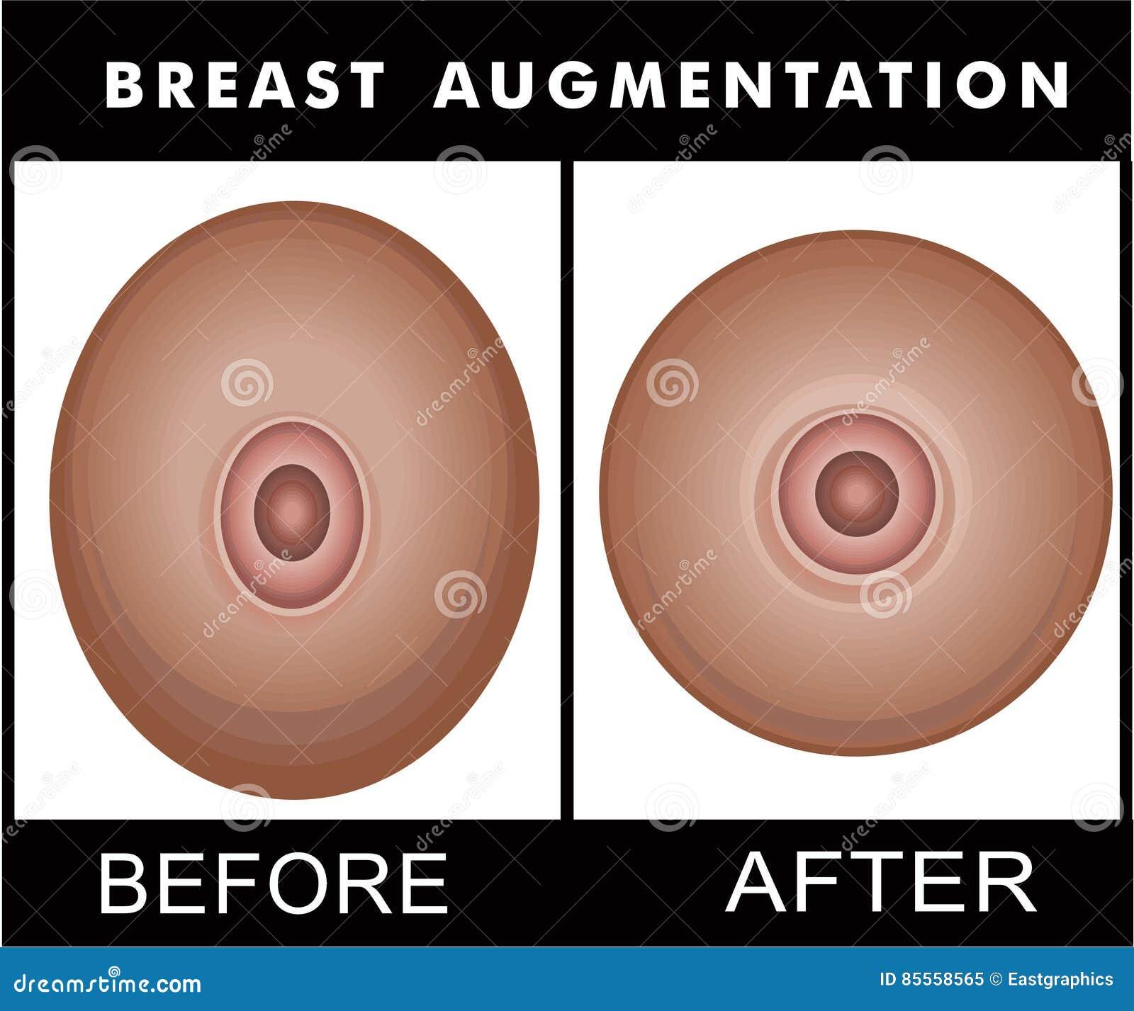Brust-Vermehrung vorher und nachher