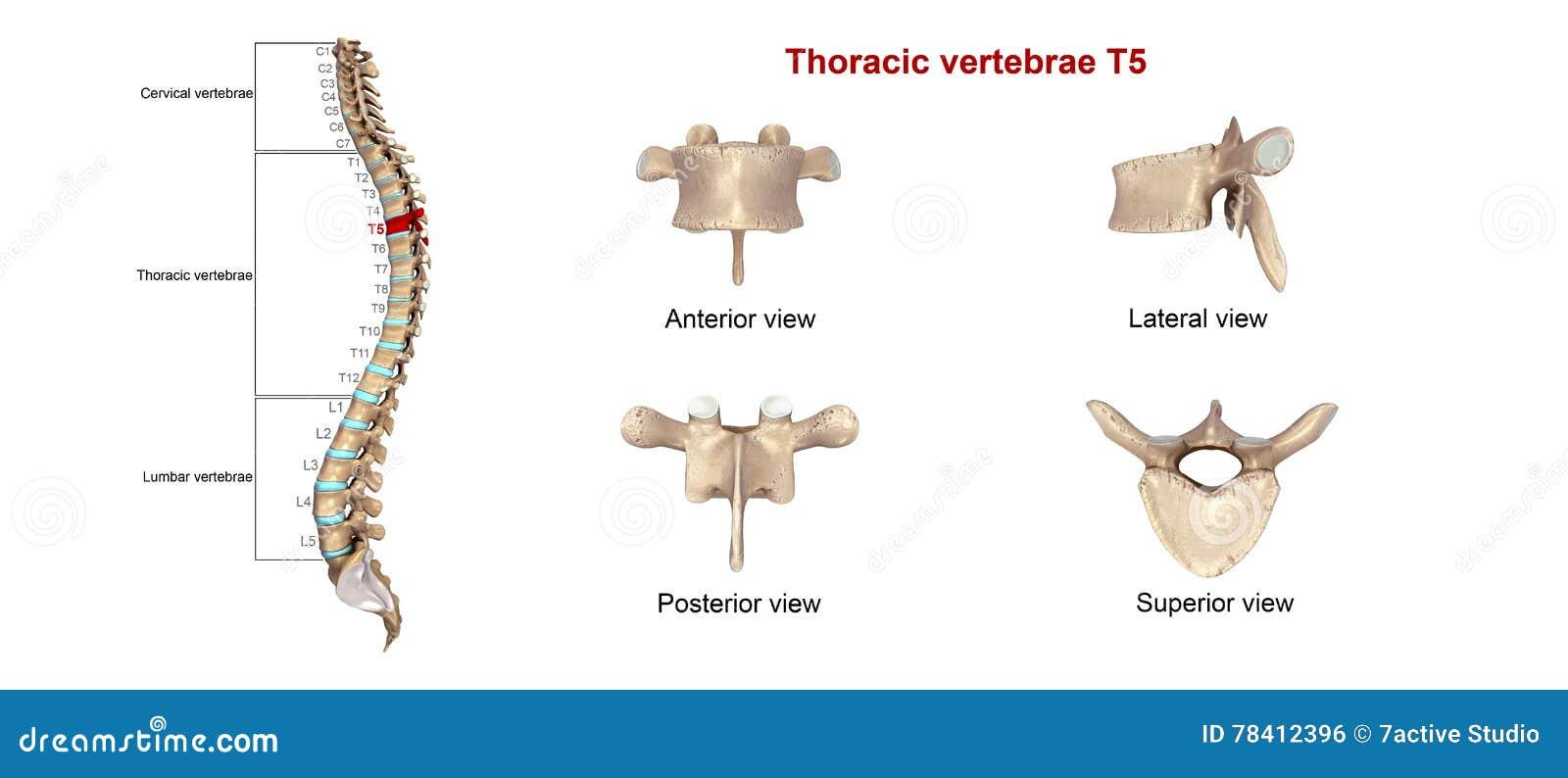 Brust- Wirbel T5 stock abbildung. Illustration von backache - 78412396