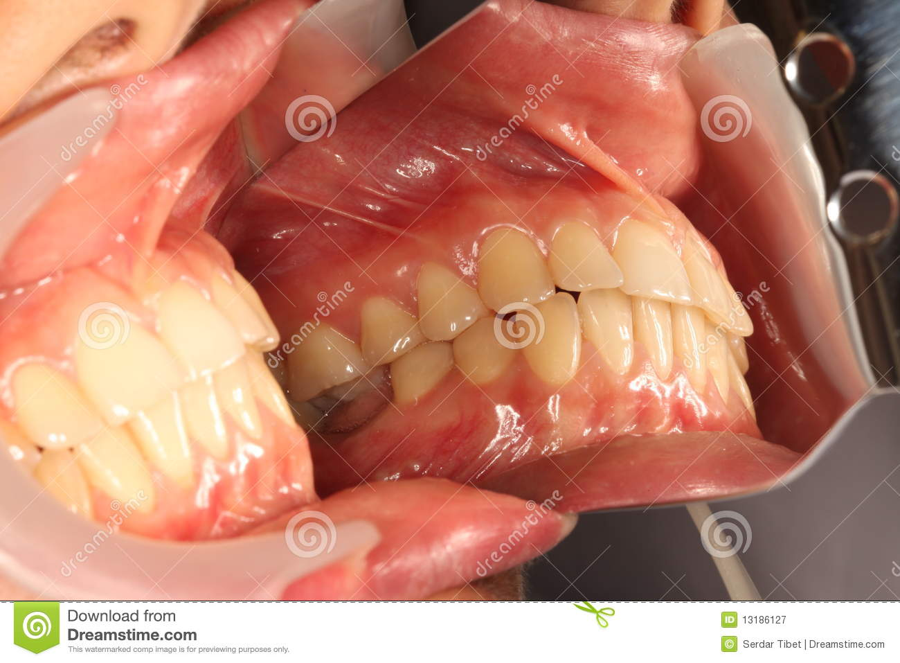 Buccal View Royalty Free Stock Photography Image 13186127