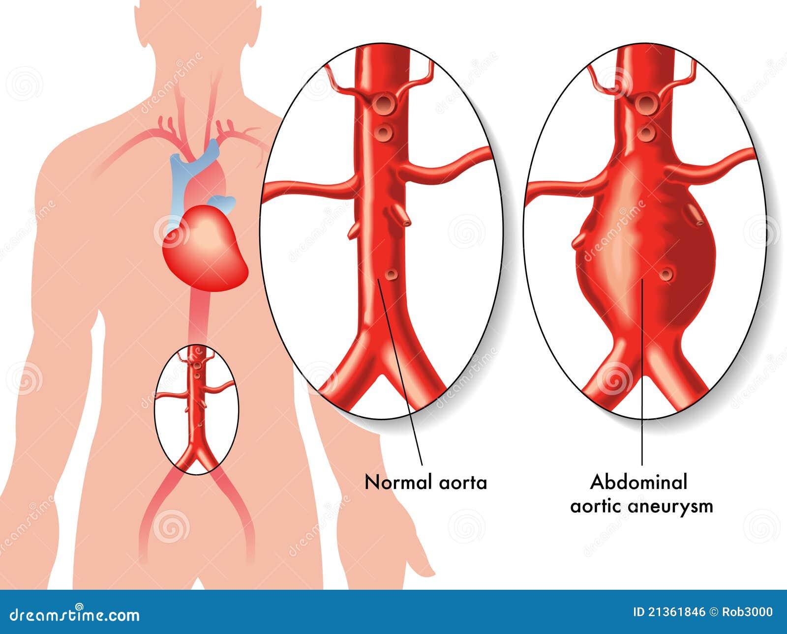 Buik aortaaneurisma