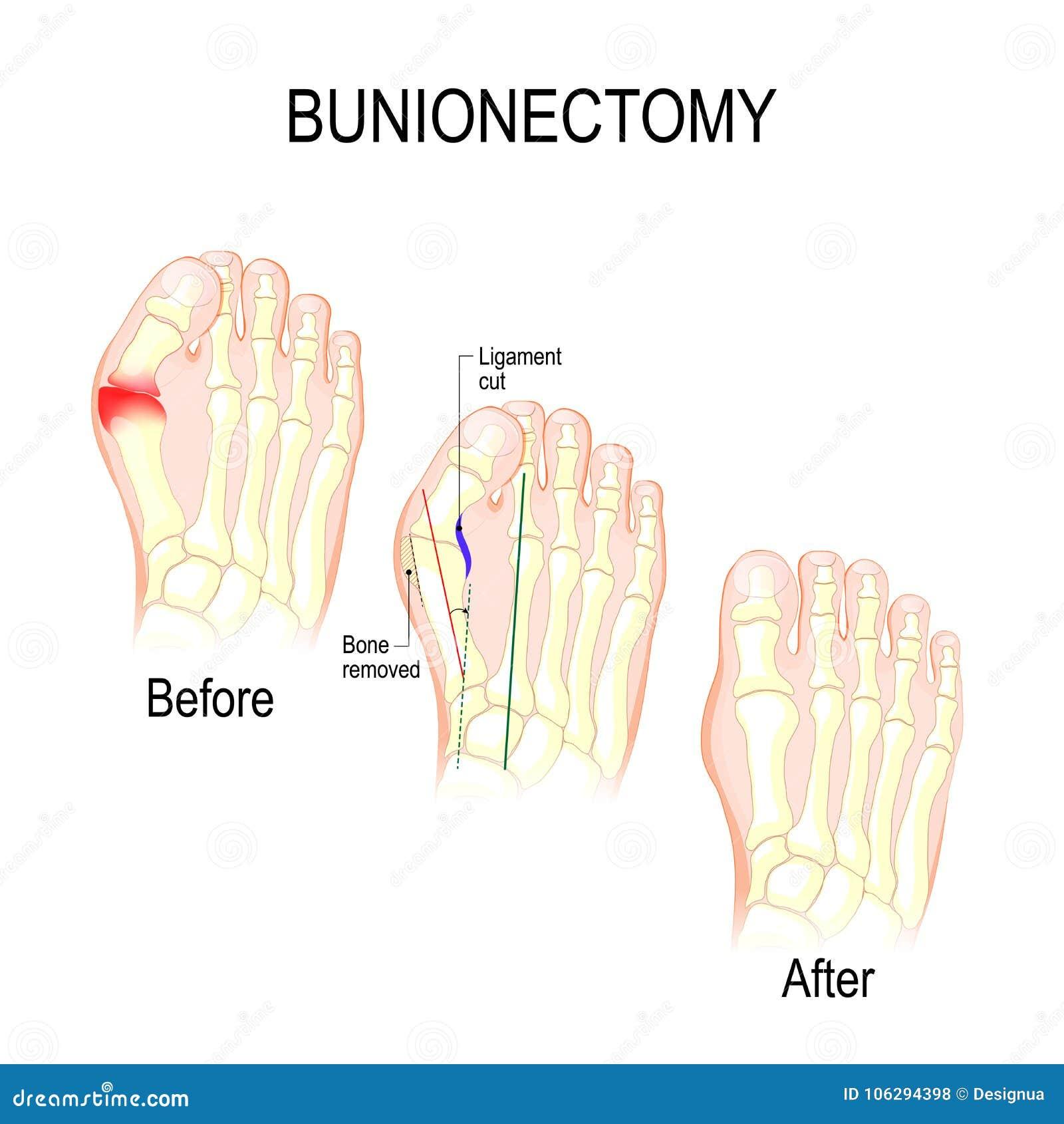 Bunionectomy chirurgie om pathologie van de voet te verbeteren