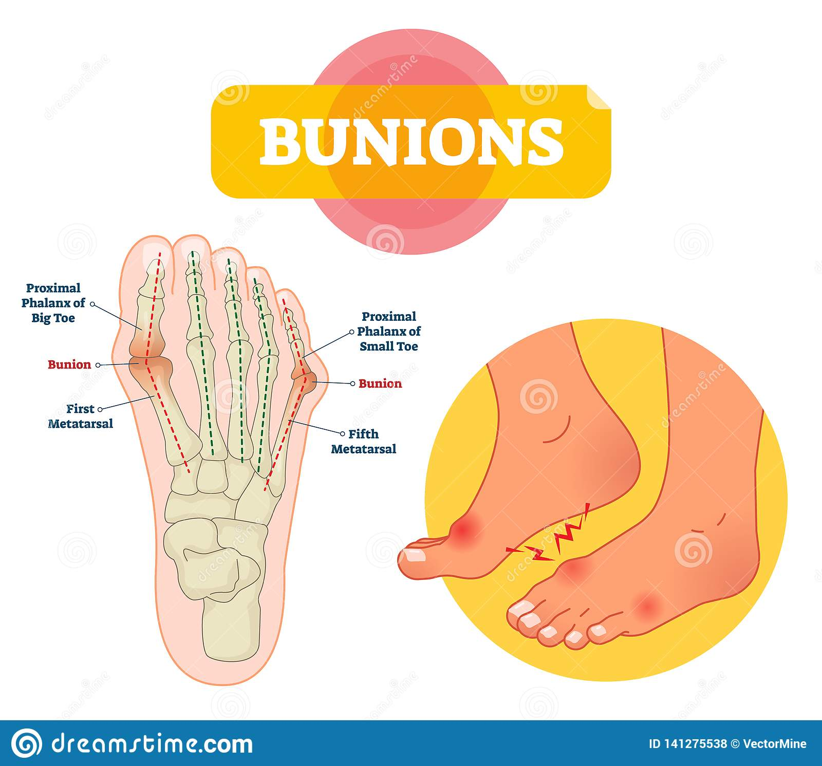 bunions vector illustration  labeled feet bone disorder explanation scheme