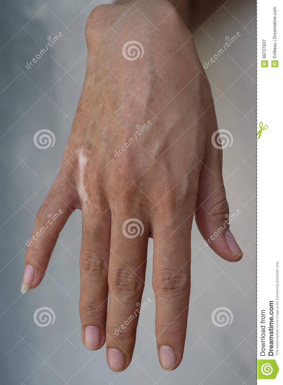 Burn Scar stock image  Image of person, painful, female - 88707837