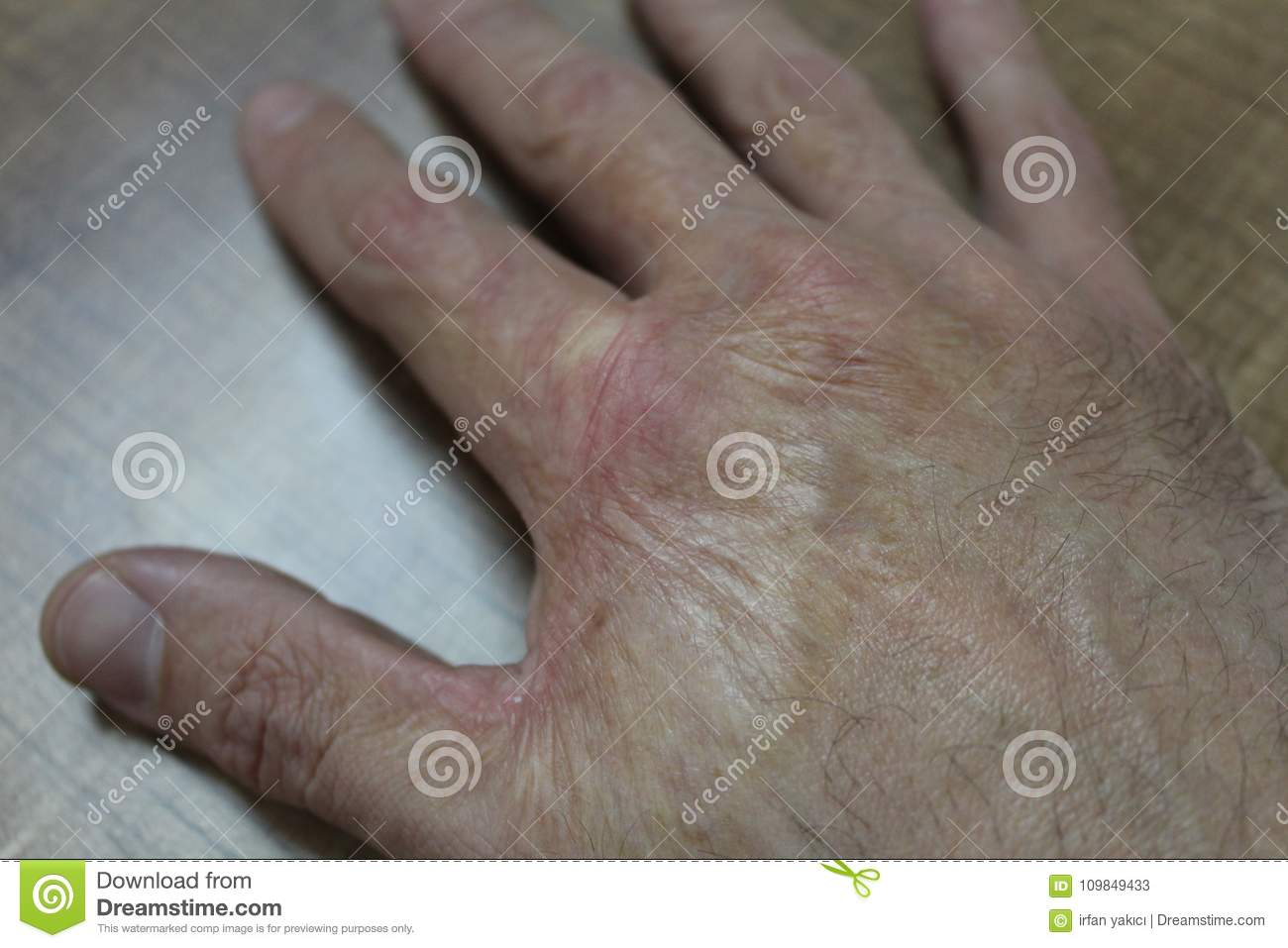 Burn scar stock image  Image of care, medicine, male - 109849433
