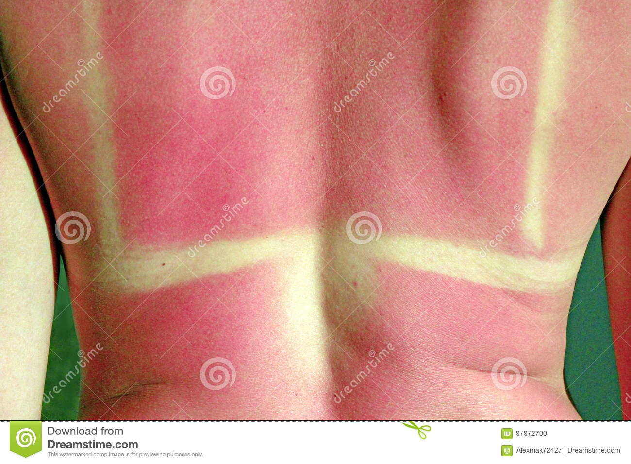 Burn From The Sun On The Body Stock Photo - Image of girl