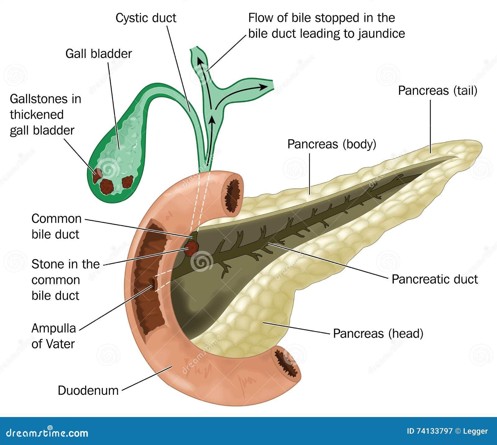 Cálculos biliares en vesícula biliar