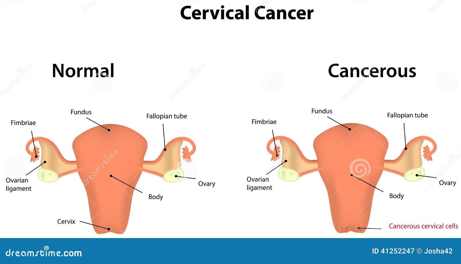 Cáncer de cuello del útero