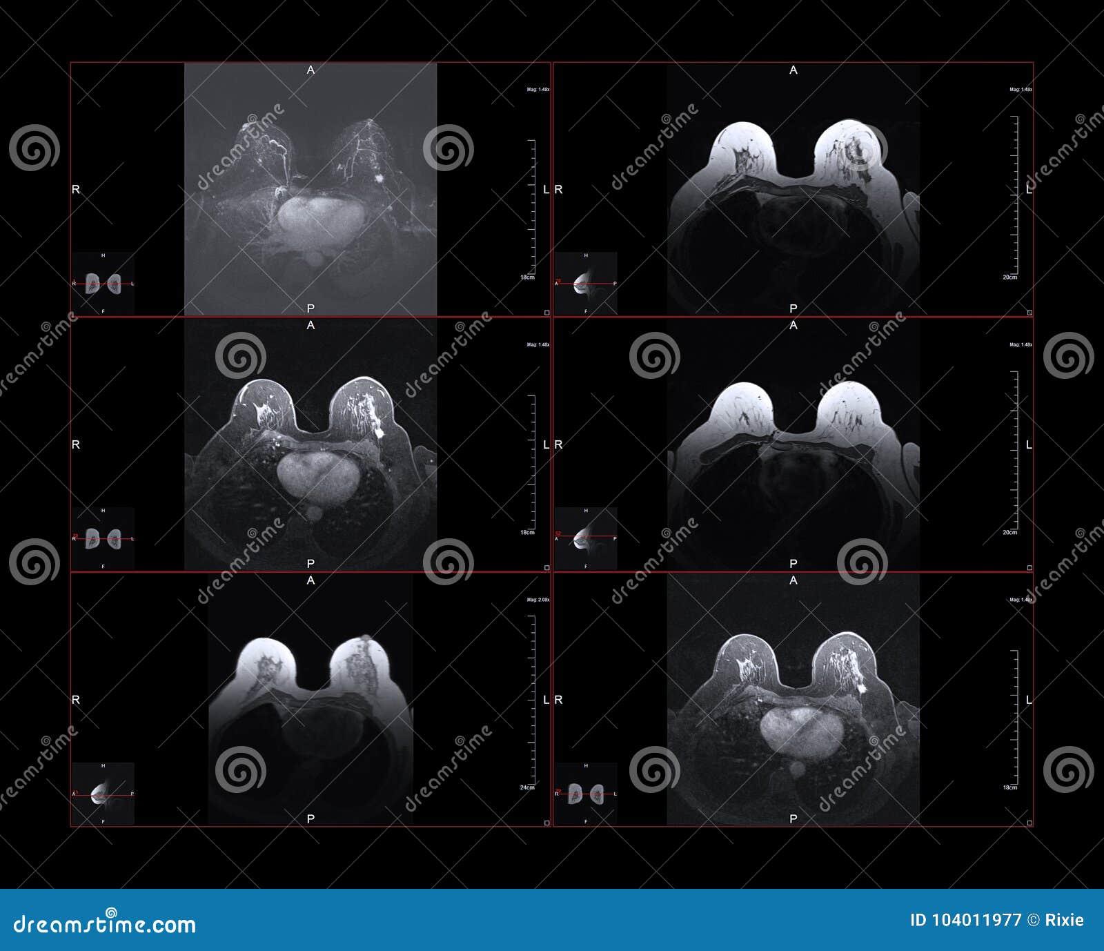 Cáncer de pecho MRI