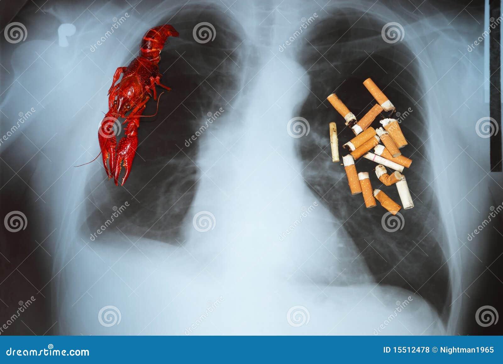 Fotos de archivo libres de regalías: Cáncer de pulmón