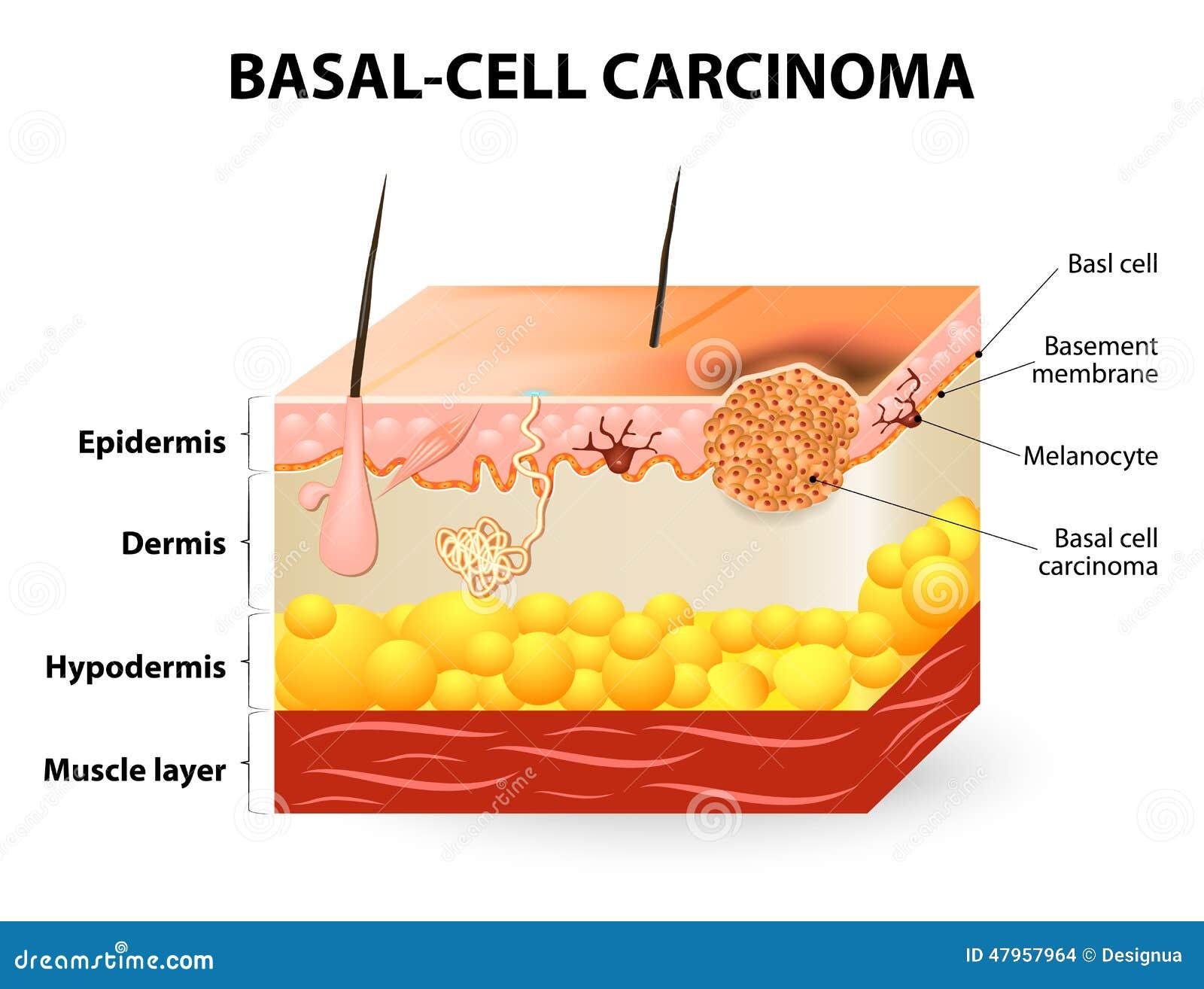 Cáncer del carcinoma de la Básico-célula o de la célula básica