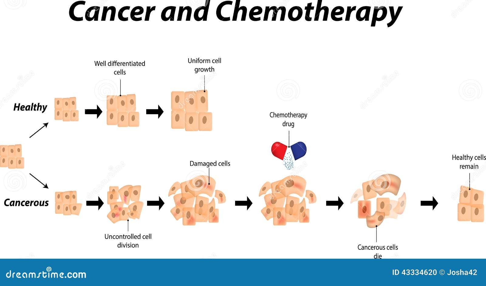 Cáncer y Chemotheraphy ilustración del vector. Ilustración de ...