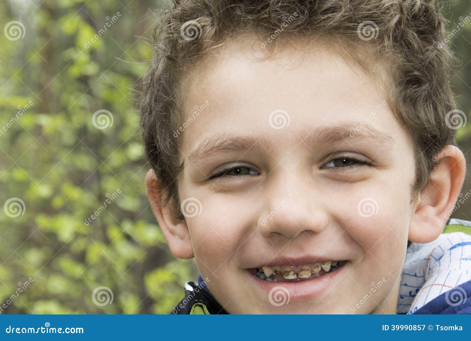 Cárie dos dentes do menino.