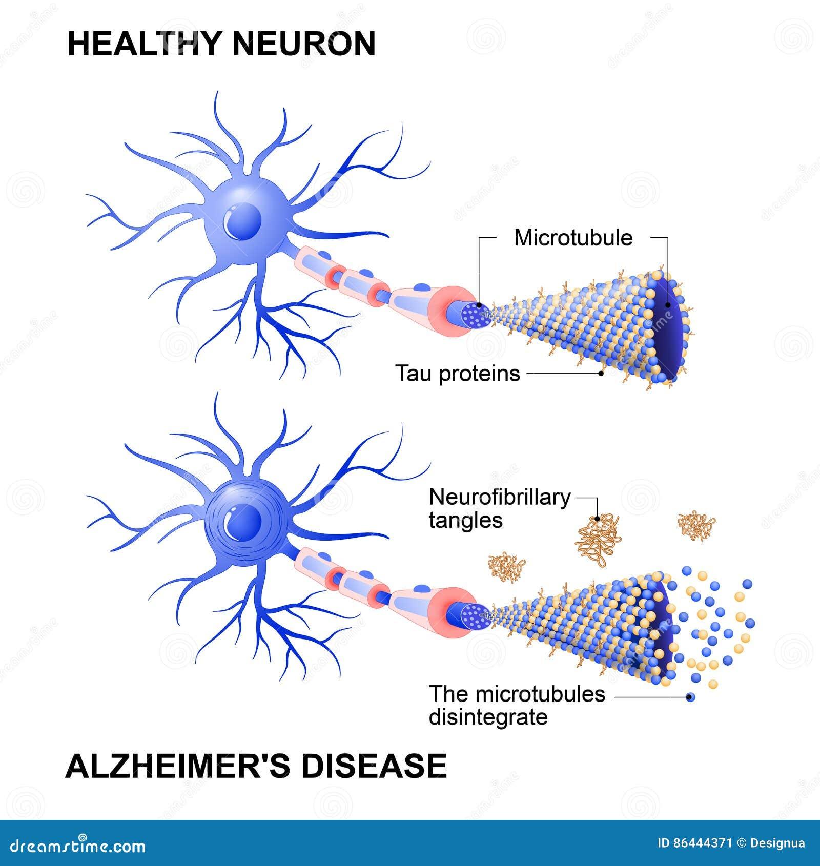 Célula y neuronas sanas con enfermedad del ` s de Alzheimer Hypothesi del Tau