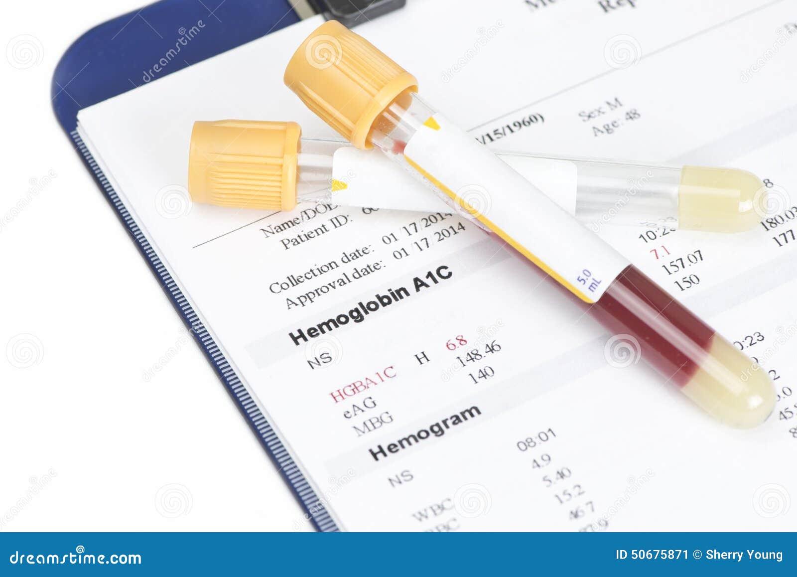 Download A1C报告 库存图片. 图片 包括有 胰岛素, 实验室, 蝴蝶, 报表, 血液学, 患者, 疾病, 金子 - 50675871