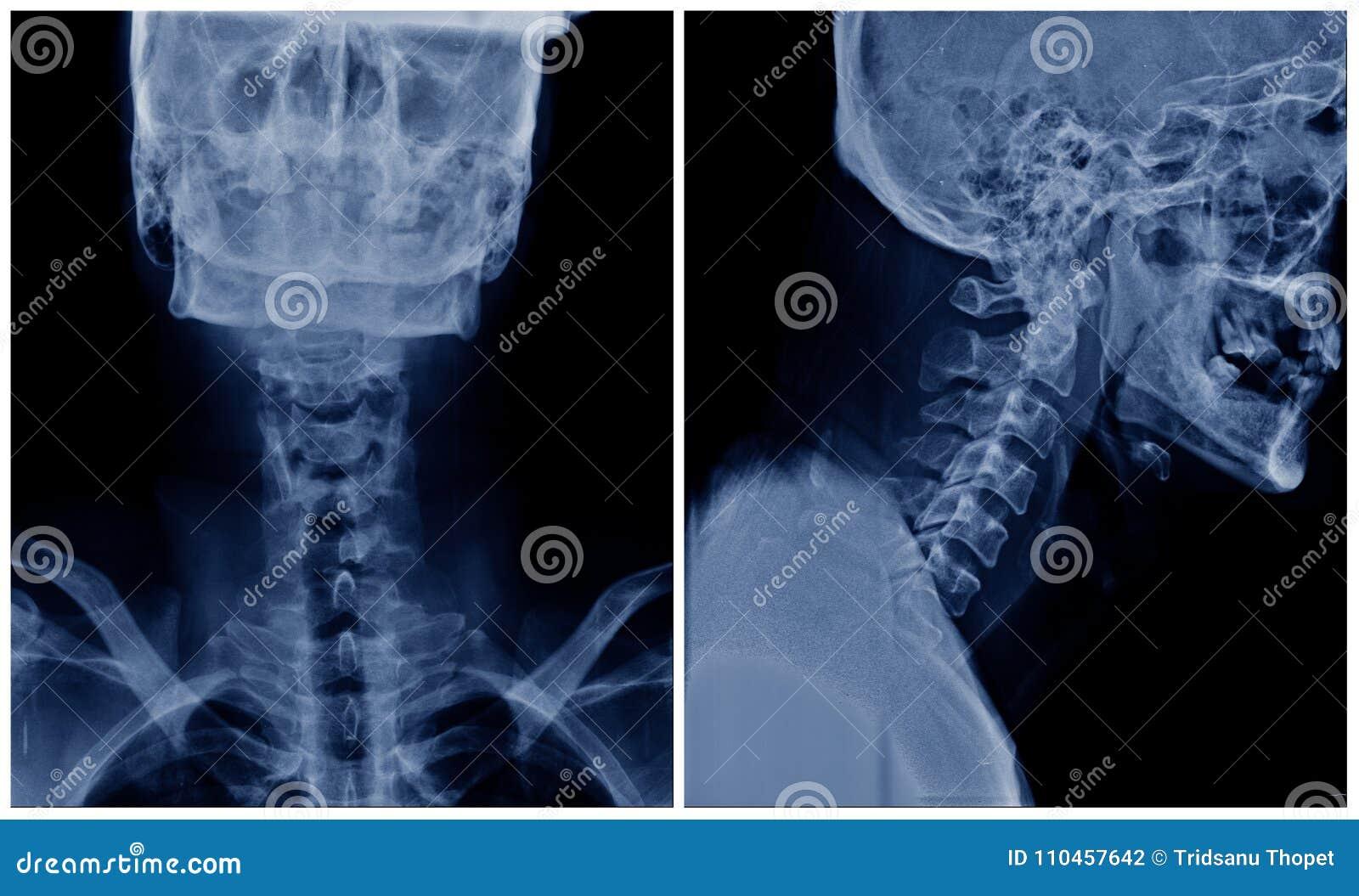 C-espinha do raio X